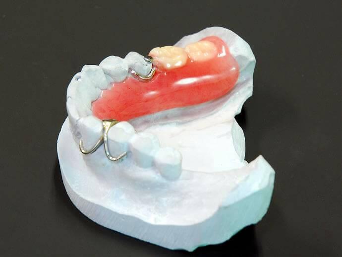 バネつき入れ歯(保険診療)