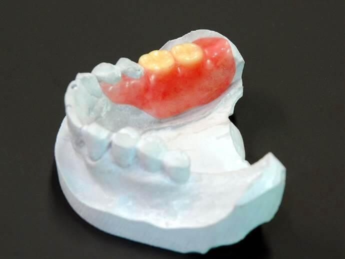 バネなし入れ歯(自費診療)