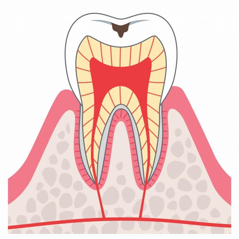 C1 初期むし歯