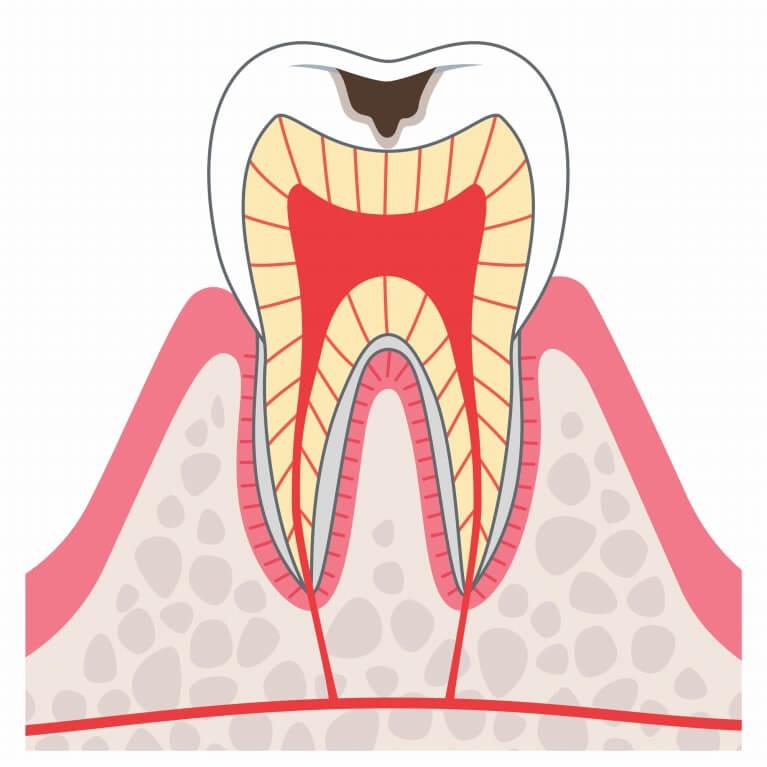 C2 歯の内側まで進んだむし歯