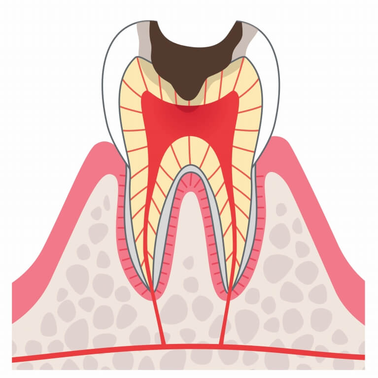 C3 神経まで進んだむし歯