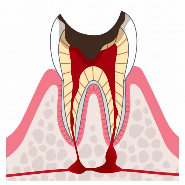 C4 歯の根っこ(歯質)が失われる