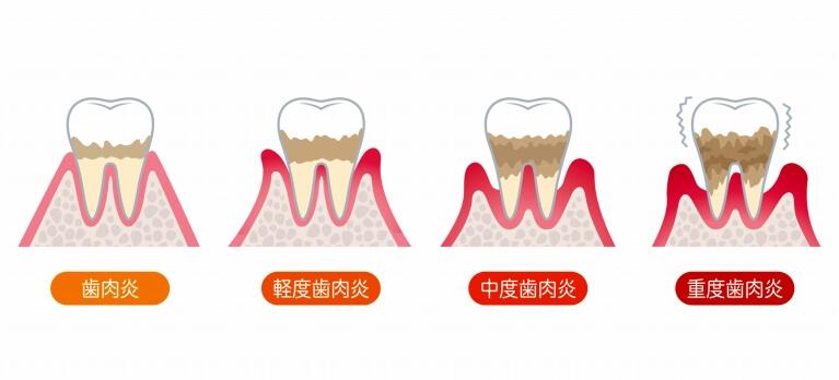 歯周病の進行について