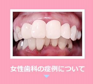 女性歯科の症例について