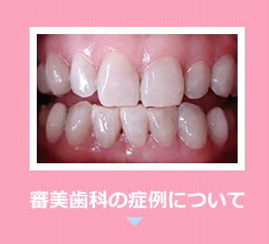 審美歯科の症例について