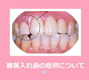 審美入れ歯の症例について